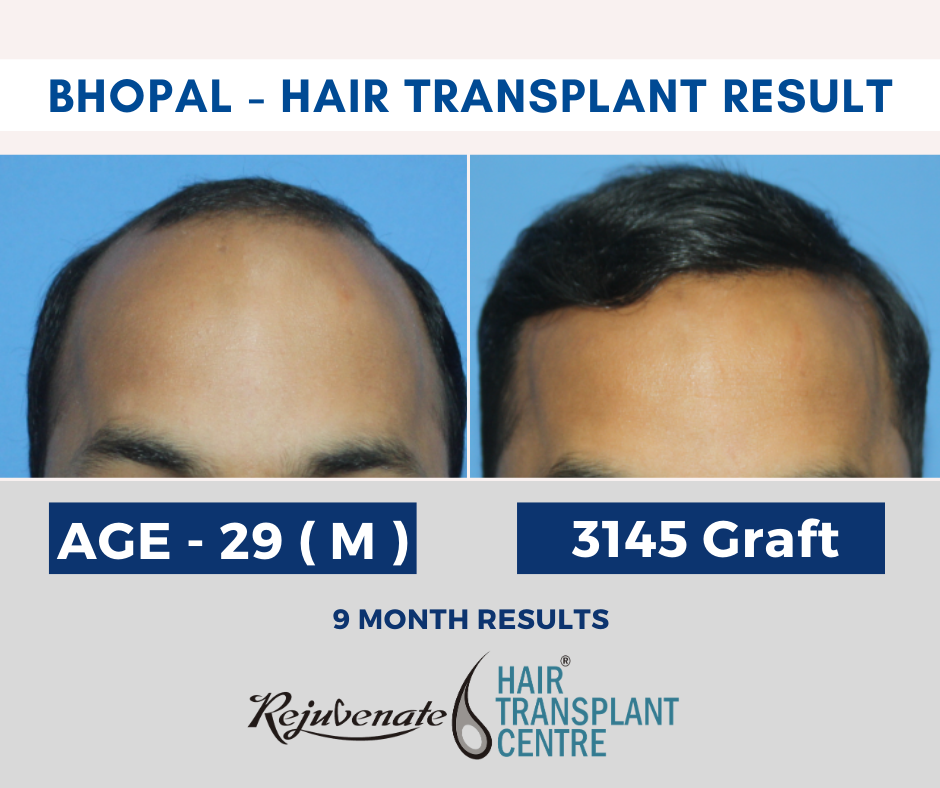 hair transplant cost in Bhopal