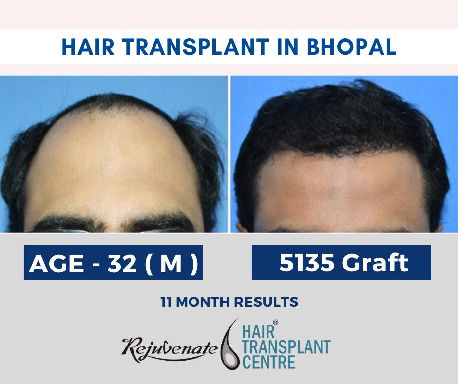 hair transplant in bhopal