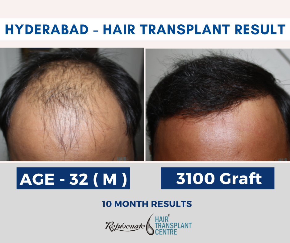 Hair Transplant Hyderabad Result