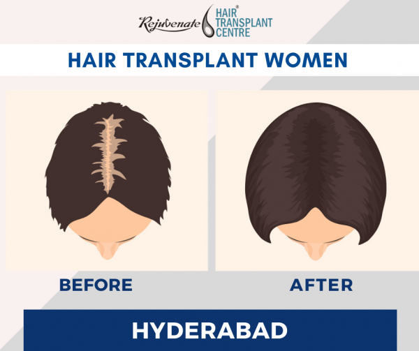 hair transplant Women Hyderabad