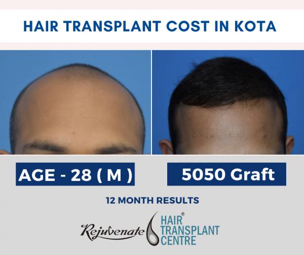 Hair Transplant cost in kota
