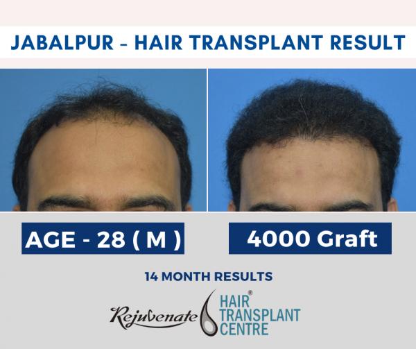 Jabalpur - hair transplant Result ( FUE Method )