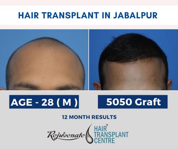 hair transplant Jabalpur