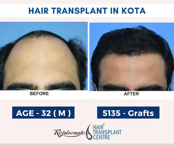 hair transplant in Kota