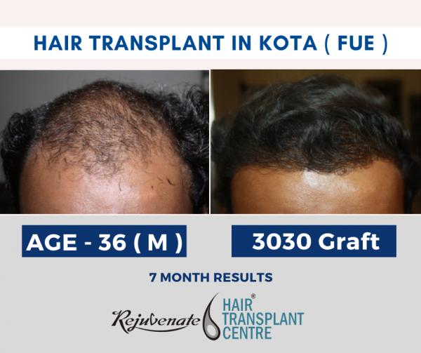 hair transplant in kota - FUE Technique