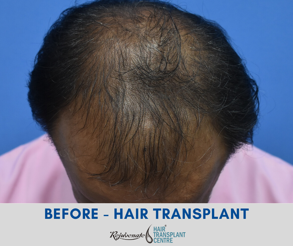 BEFORE - HAIR TRANSPLANT INDIA RESULT