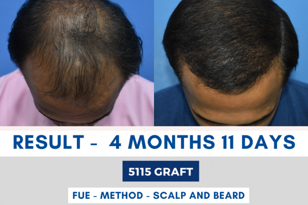 Early Hair Transplant Result in Indore-4 Months-11-Days