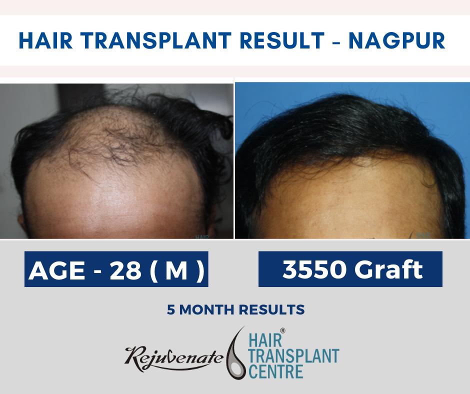 Hair Transplant Result - Nagpur