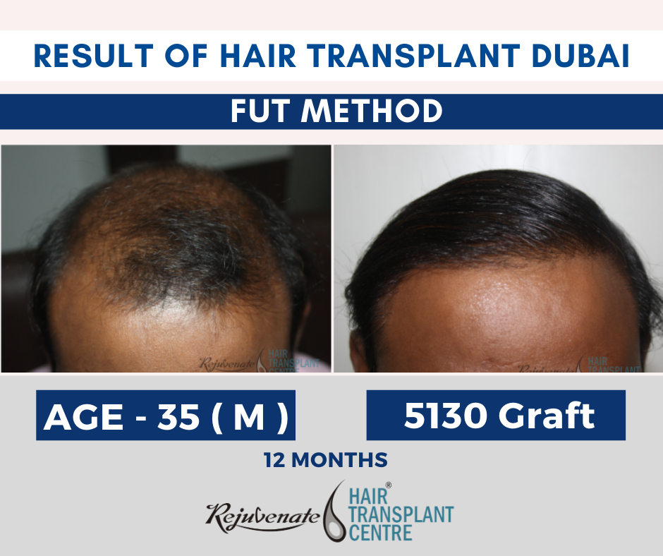 Hair Transplant Result in Dubai ( FUT Method ) UAE
