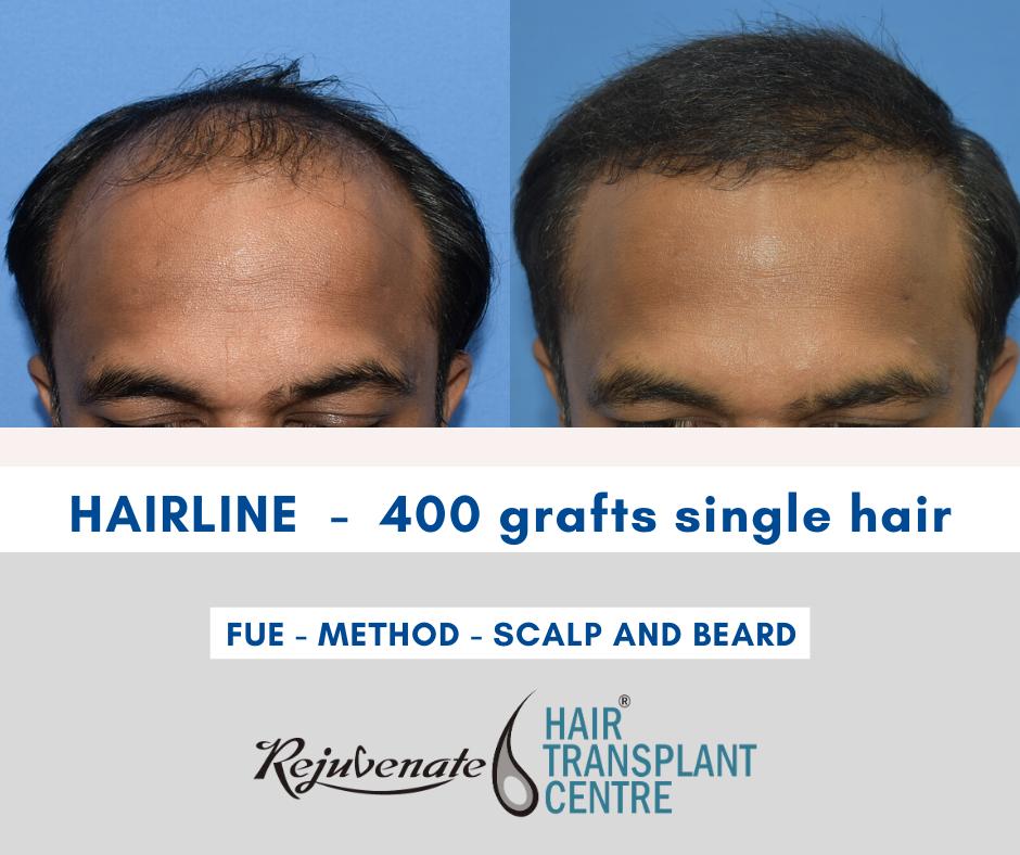 Hair Transplant best hairline