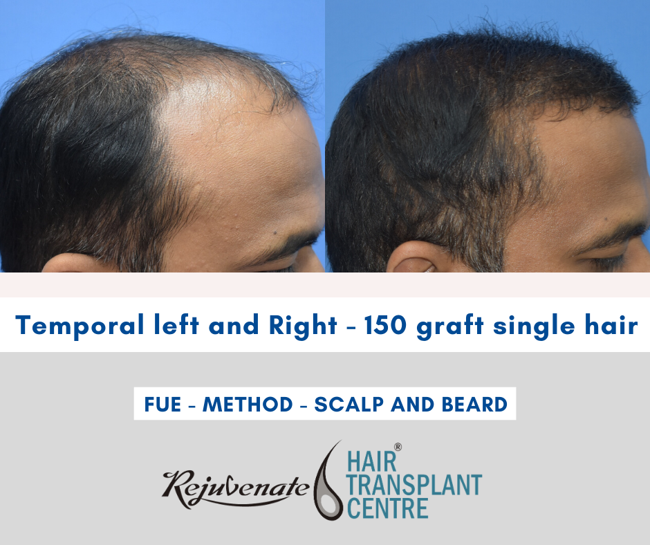 Temporal left and Right ( rejuvenate hair transplant centre, Indore )
