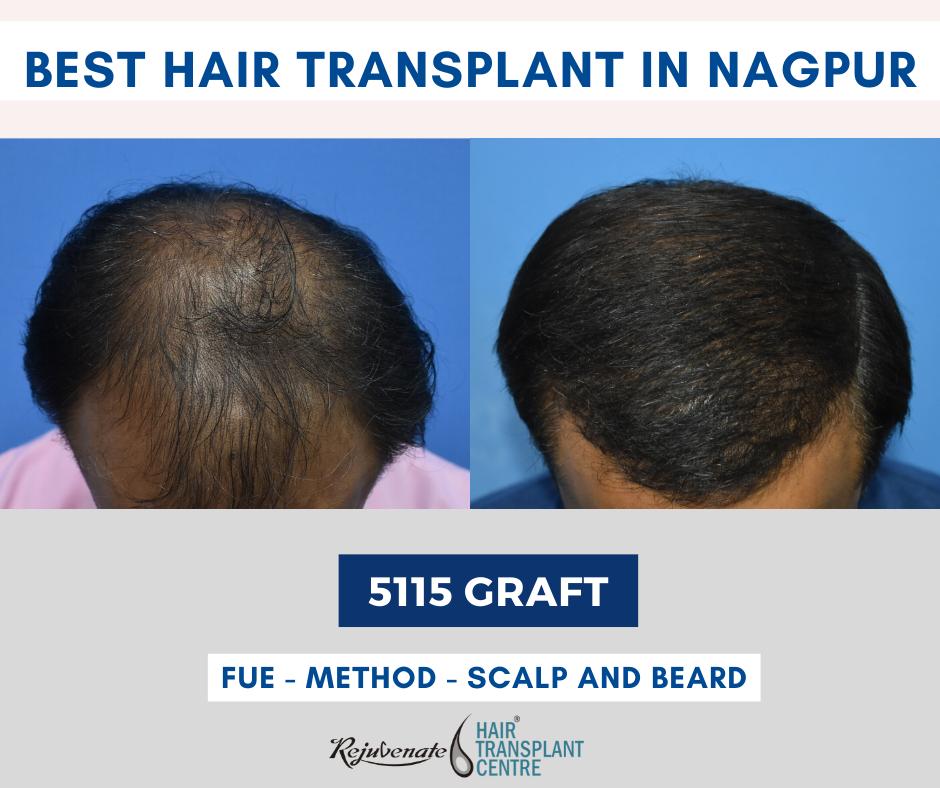 best hair transplant in Nagpur