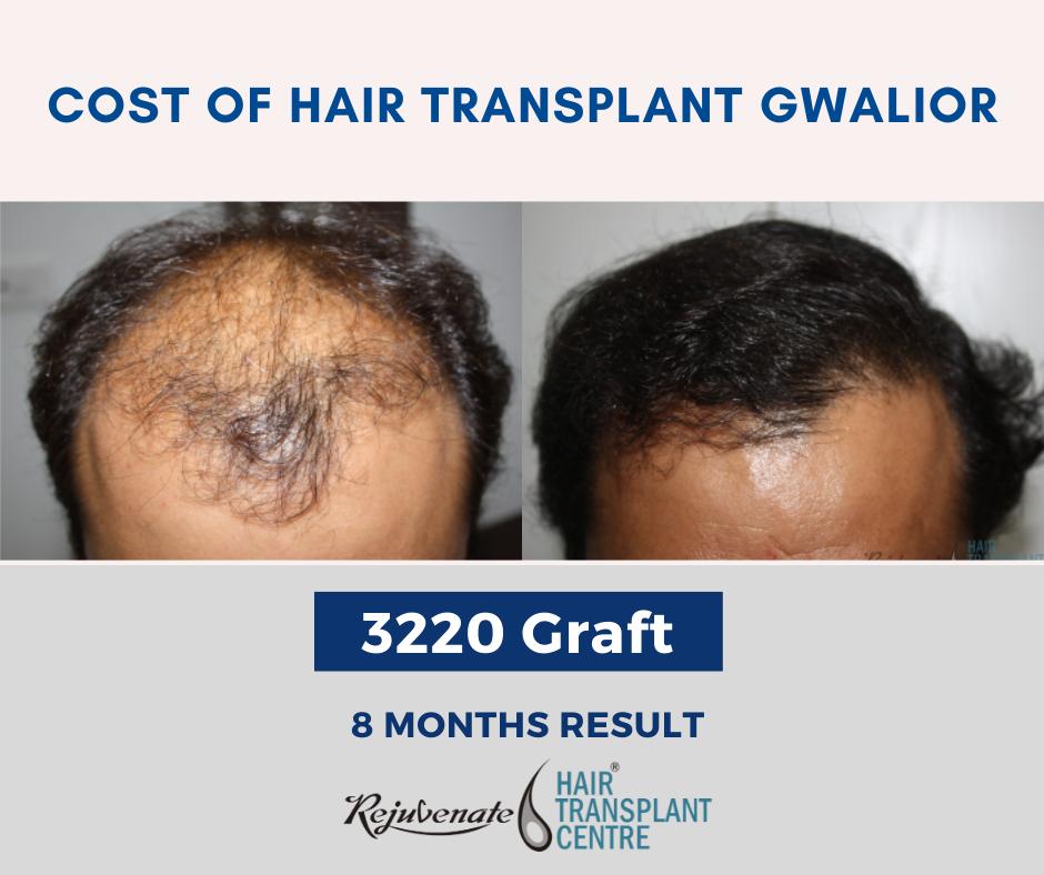 cost of Hair Transplant Gwalior