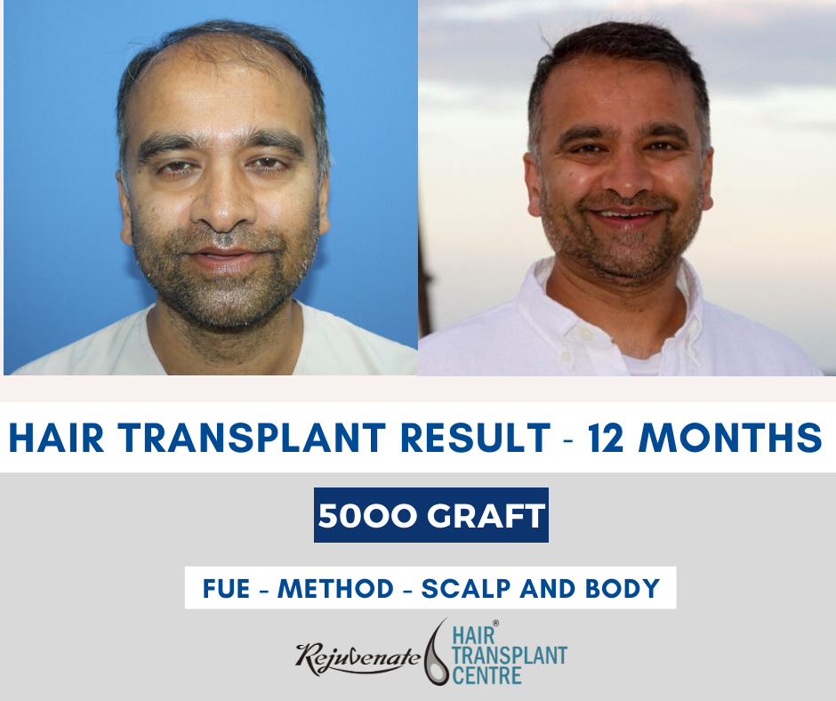 best hair transplant surgery in India