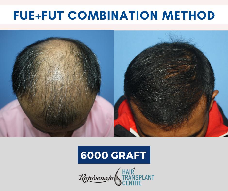 FUE+FUT Combination hair transplant