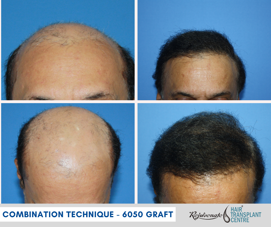 BHT - Hair Transplant - Combination Technique