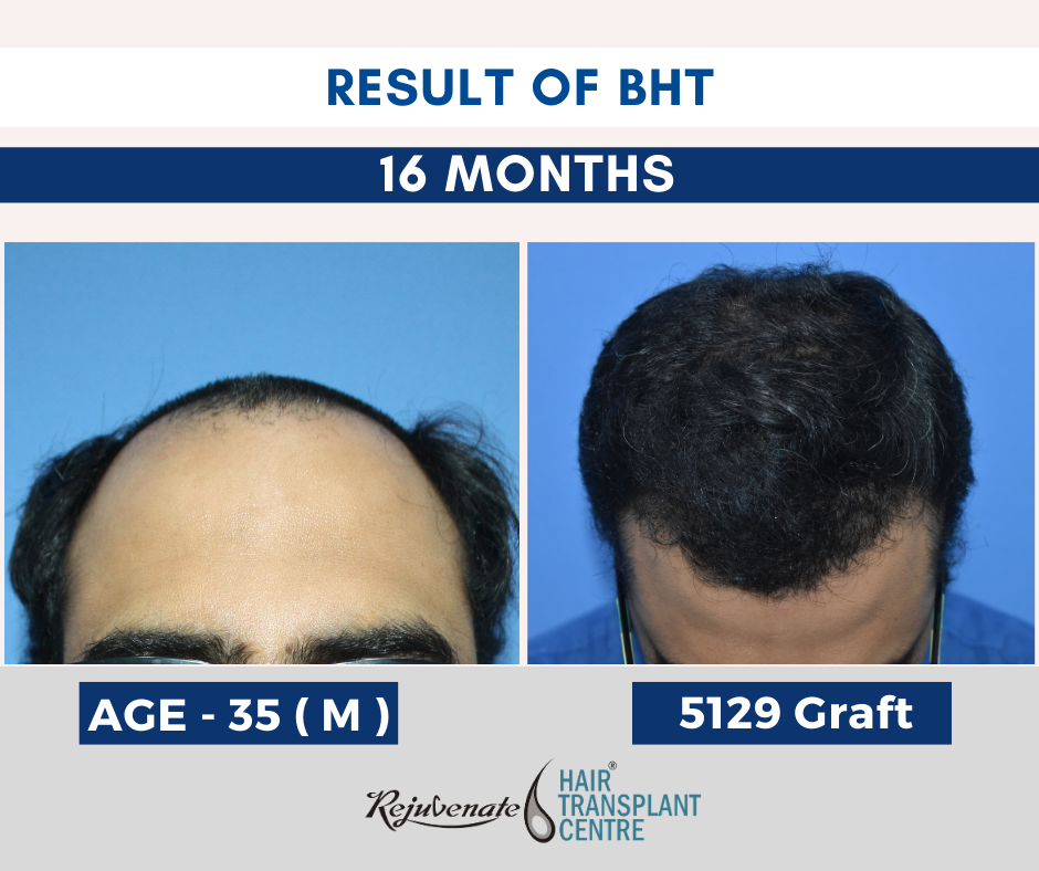 BHT - Body hair transplant