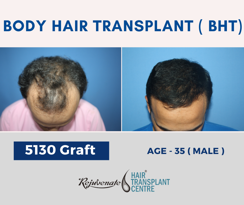 BHT Hair transplant result in India