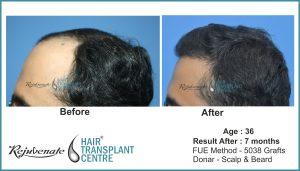 Bhopal, FUE Hair Transplant result