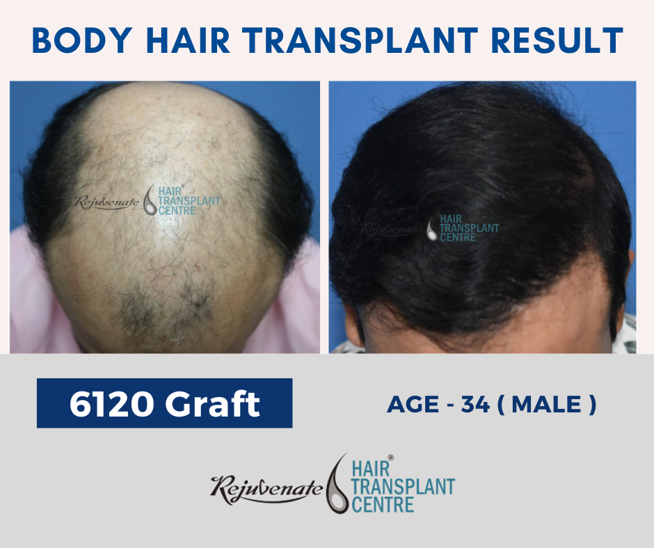 Body hair transplant - 6120 graft
