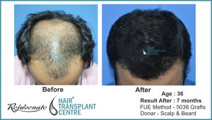 FUE-Hair-Transplant-result-After-7-Months