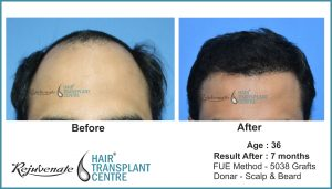 FUE-Hair-Transplant-result-After-7-Months Indore