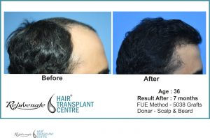 FUE-Hair-Transplant-result, Indore