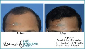 FUE Hair Transplant result, Indore