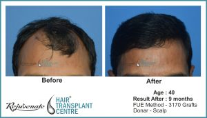 FUE hair transplant Result after 9 months, Indore