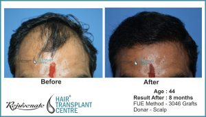 Indore, hair transplant result - age -44