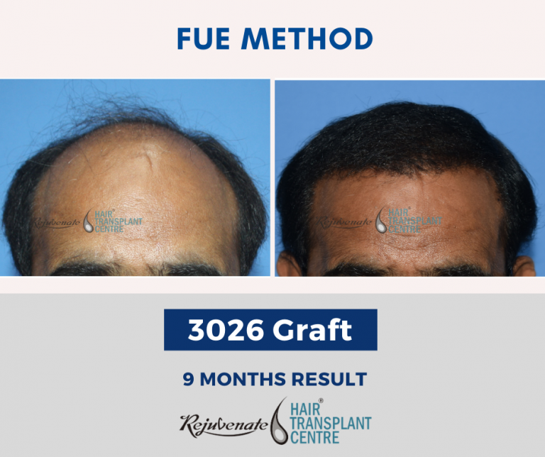 hair Hair Transplant Indore- FUE Method