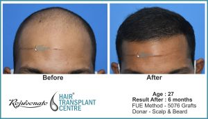 hair transplant Result, Age - 27 - India