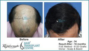 hair transplant Result India