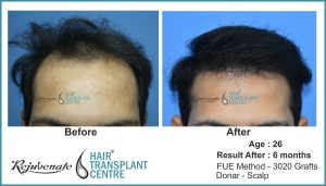hair transplant Result after 6 months, India