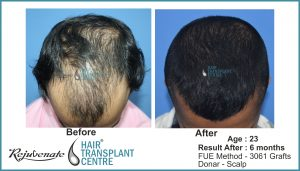 hair transplant Result after 6 months, Indore