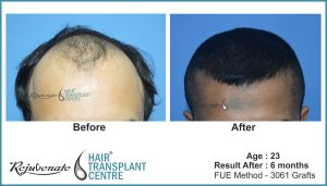 hair transplant Result after 6 months - age - 23