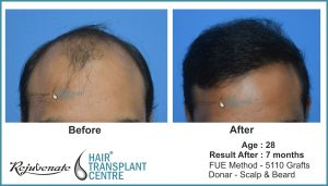 hair transplant Result after 7 months