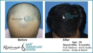 hair transplant Result after 8 months, India