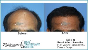 hair transplant Result after 9 months, Indore