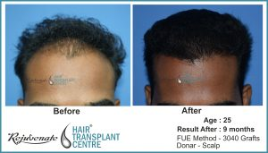 hair transplant Result after 9 months - age - 25