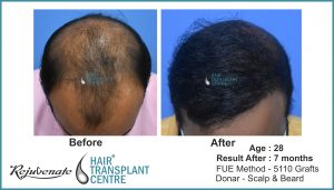 hair transplant Result, age - 28