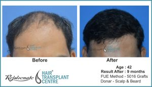 hair transplant Result, age - 42 India