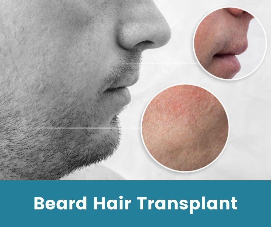 BREAD HAIR TRANSPLANT RESULT