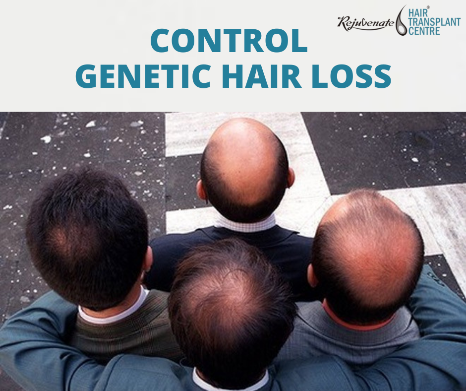 How To Control Genetic Hair Loss?