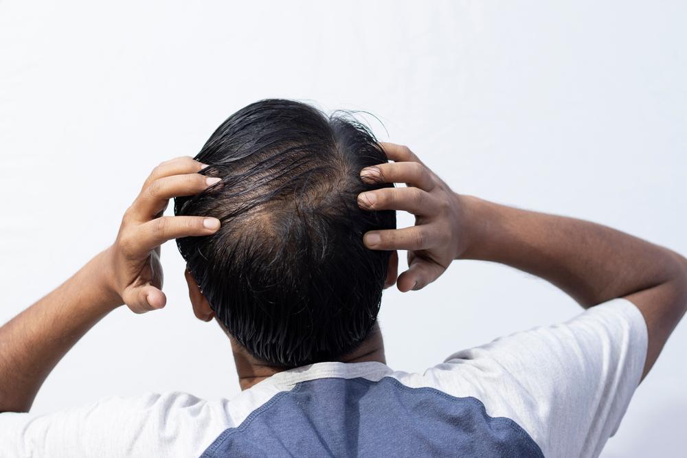 SuperFoods para el crecimiento del cabello