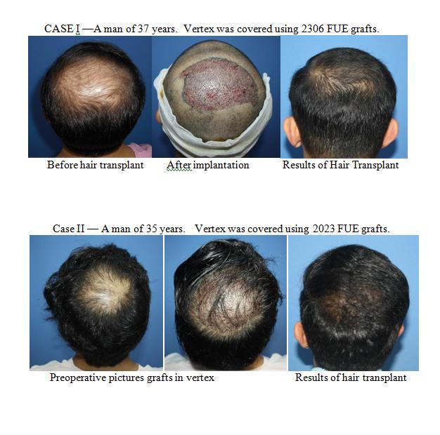 Vertex - Result of hair transplant - Rejuvenate Hair