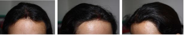 best hairline in India - Women hair transplant