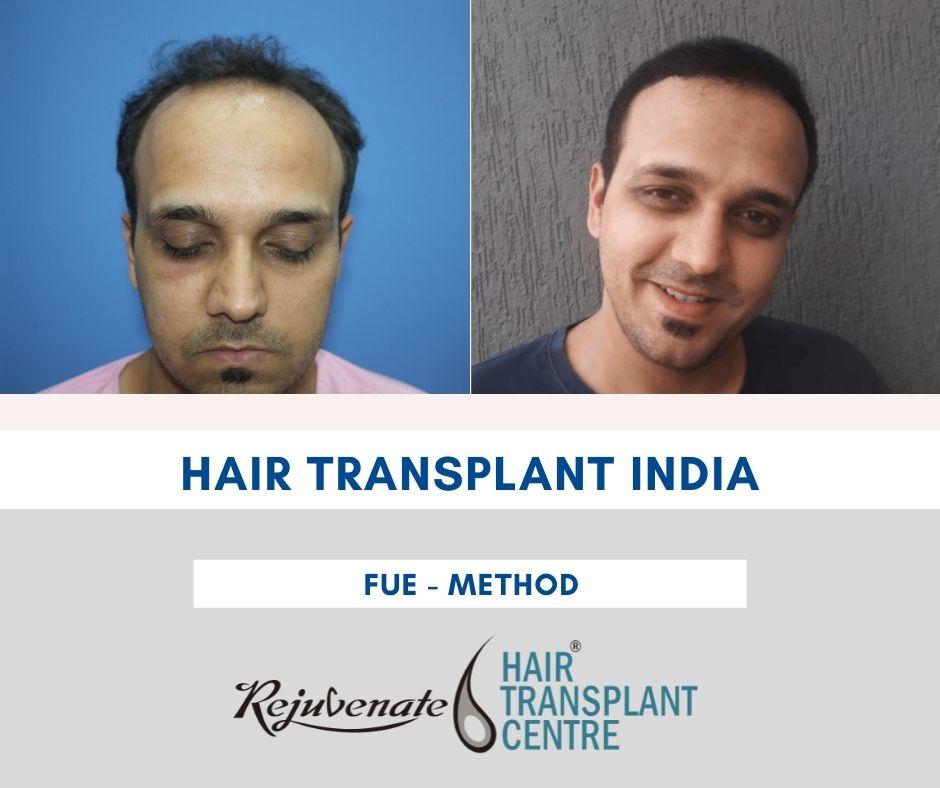Hair Transplant Price in India